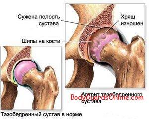Відновлення та зміцнення зв'язок і суглобів.